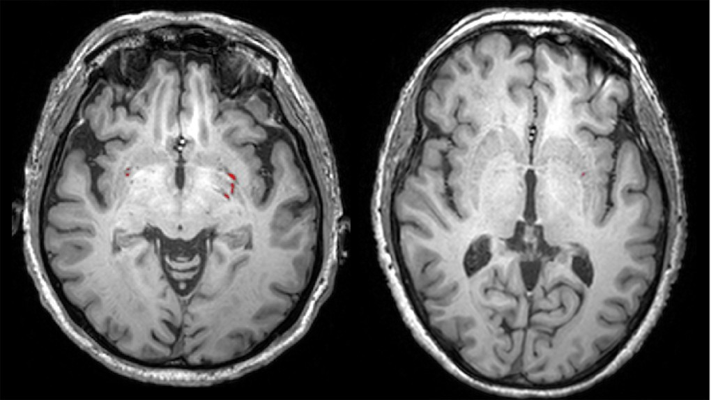 Horror on the brain: Finnish researchers map mental impact of watching scary movies
