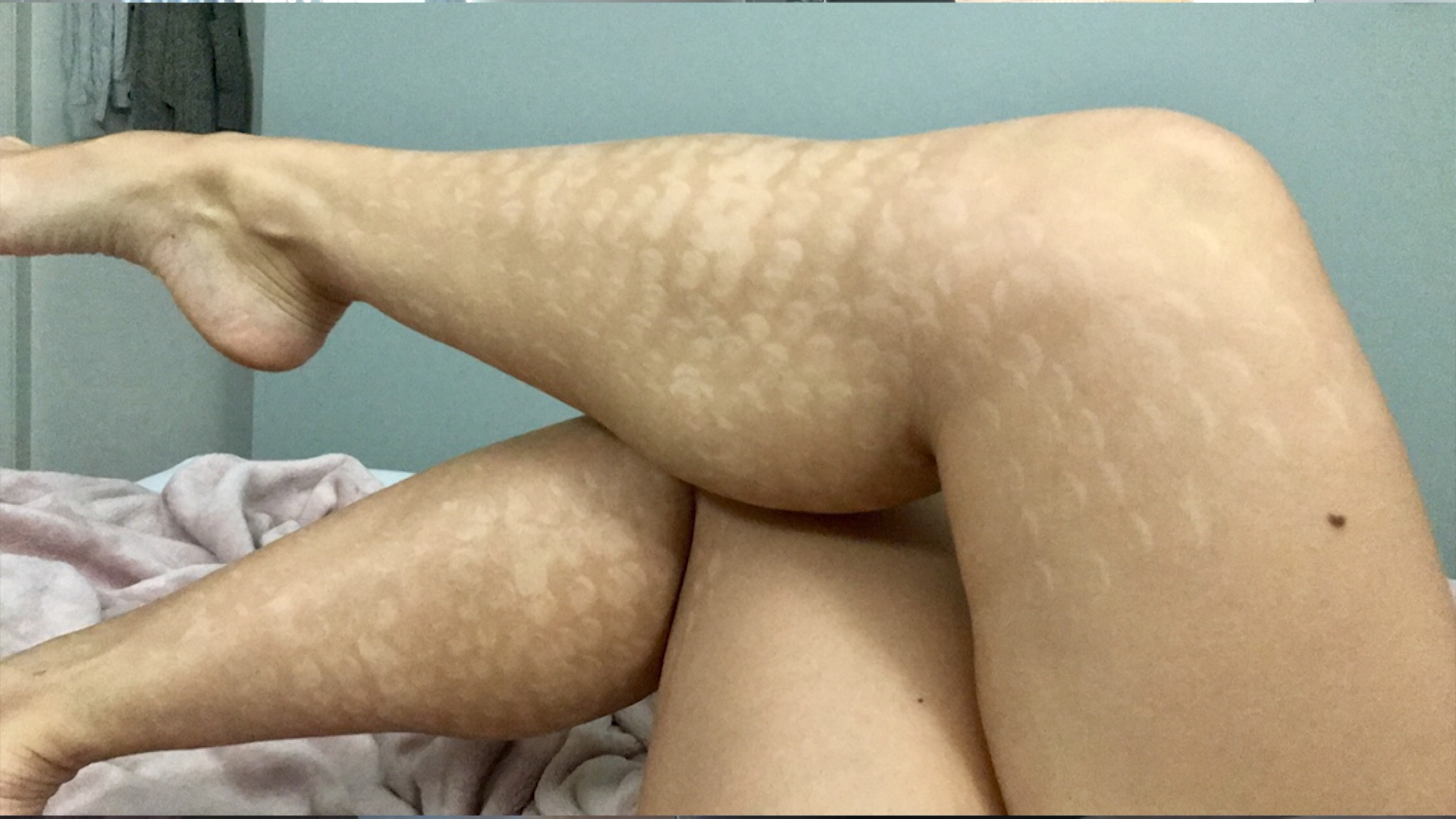 Laser Hair Removal Left Exotic Dancer With Unsightly Marks