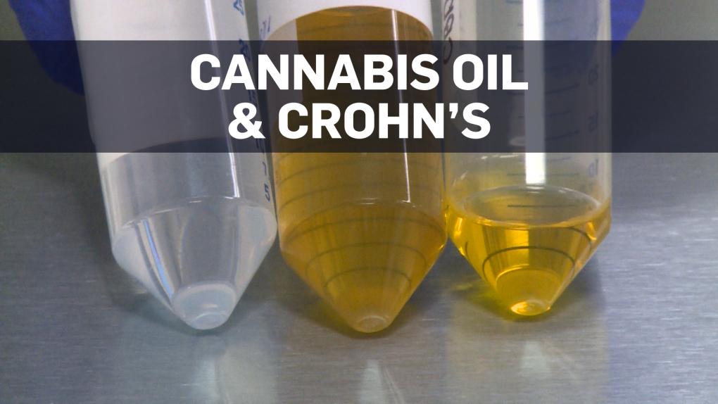Cannabis oil improves Crohn's disease symptoms: study | CTV News