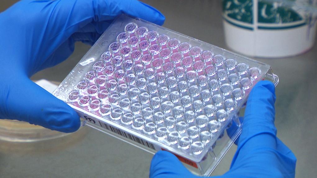 Potentially deadly drug-resistant 'fungal superbug' emerging