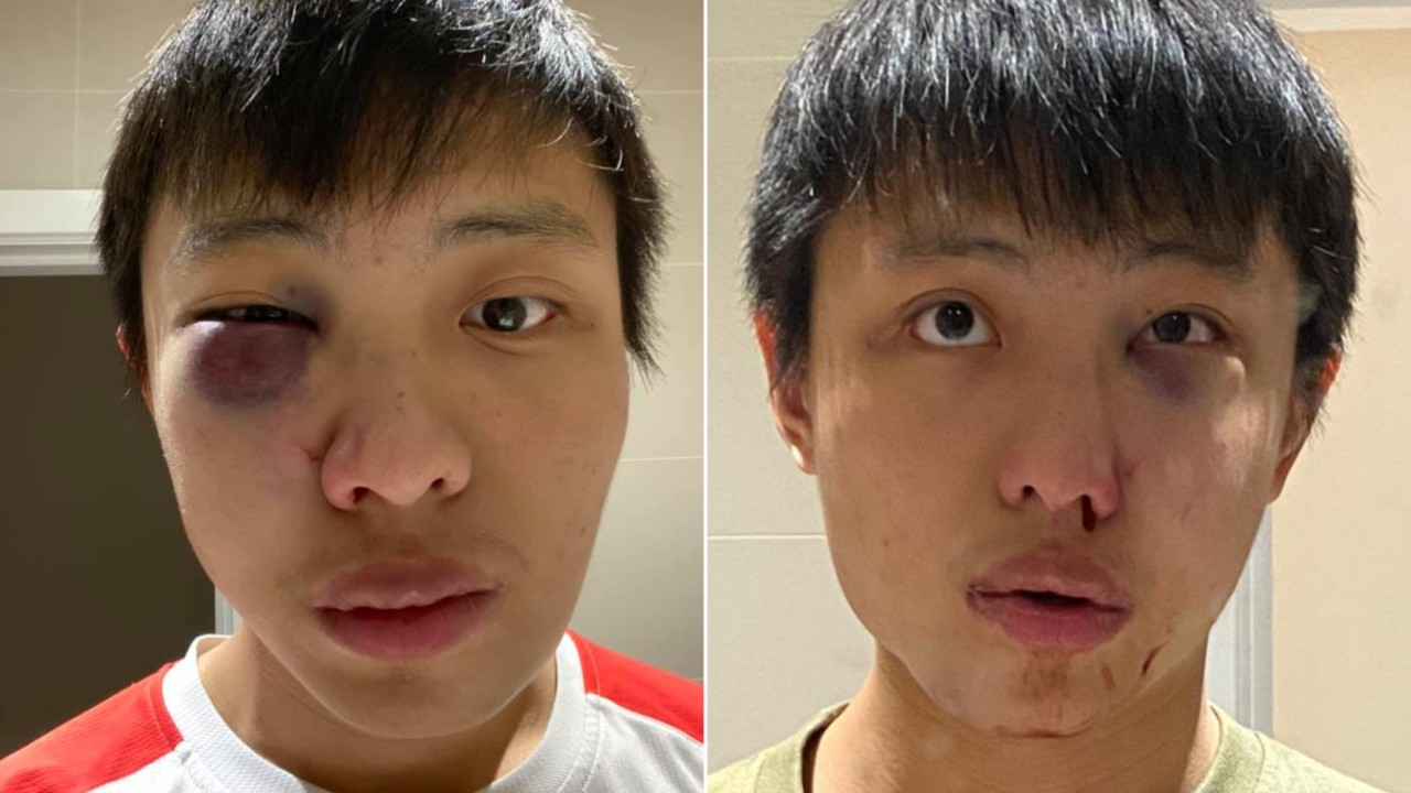 East Asian student assaulted in 'racist' coronavirus attack in London | CTV  News