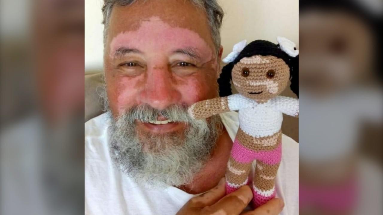 Grandfather Crochets Dolls With Vitiligo To Comfort Children With Skin Disease Ctv News